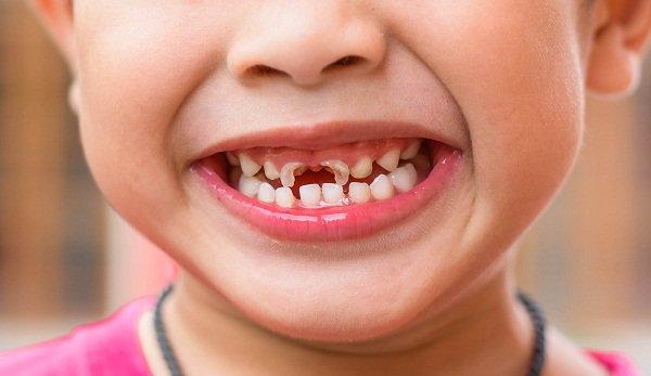 Nguyên nhân, điều trị và cách phòng ngừa sâu răng ở trẻ nhỏ